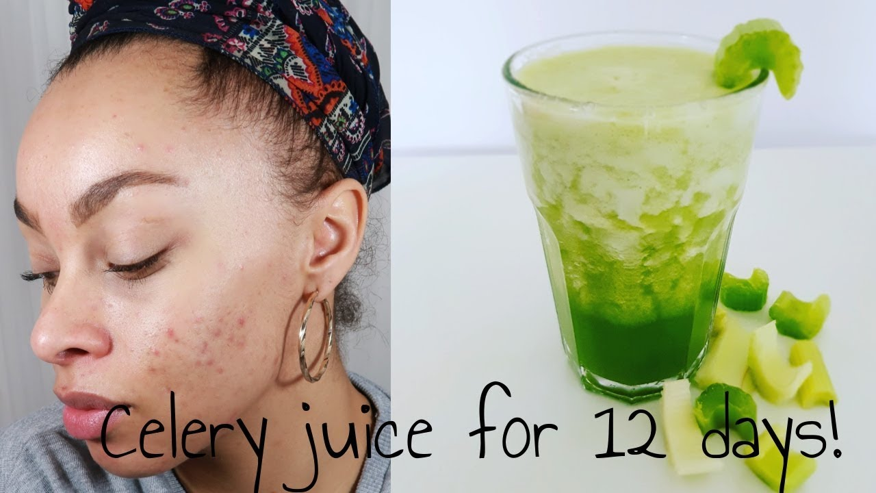 CELERY JUICE FOR ACNE PRONE SKIN - BEFORE & AFTERS