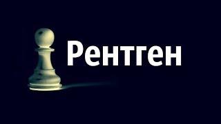 Рентген  Тактика в шахматах(Рентген. Тактика в шахматах. Смотри шахматное видео! новое видео по шахматах на тему рентген. Изучайте такт..., 2016-07-28T08:41:19.000Z)
