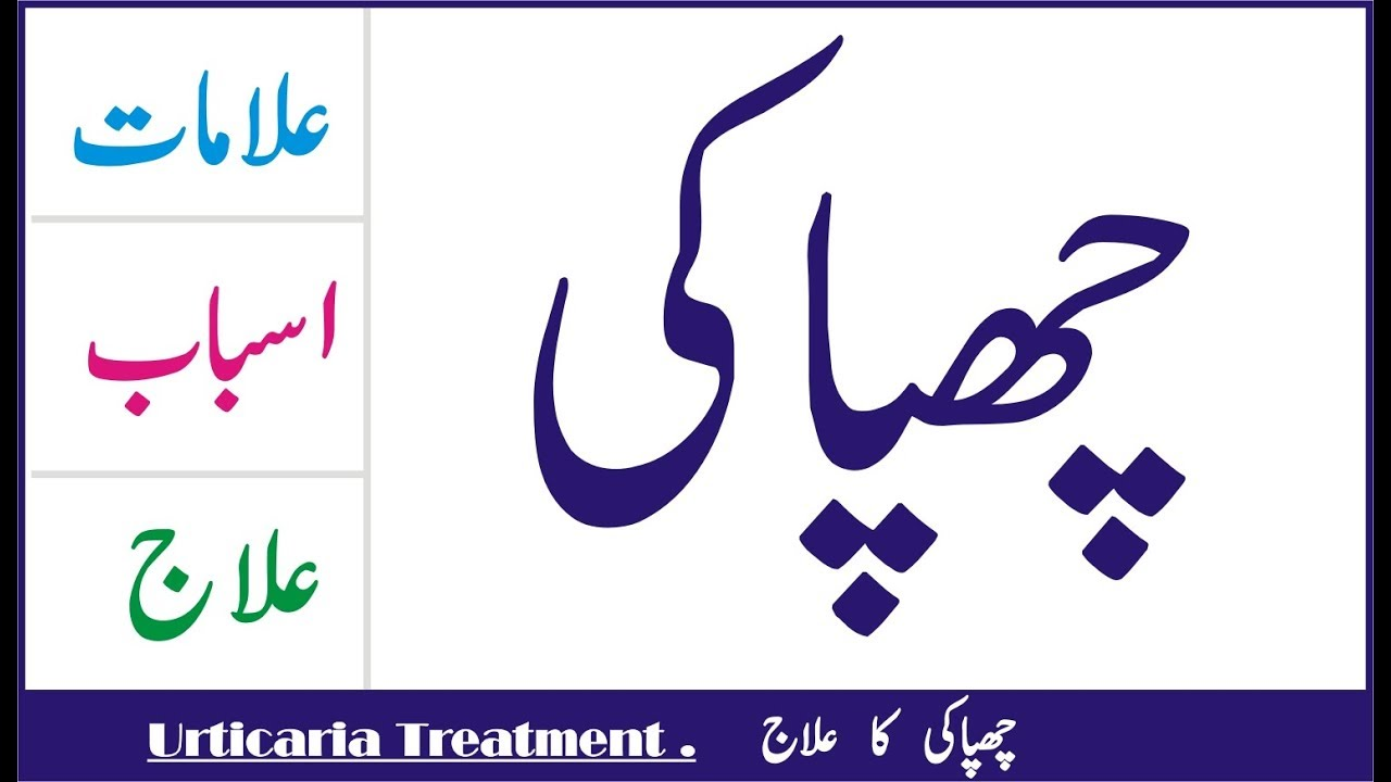 Chapaki ka desi ilaj in Urdu !! Urticaria treatment in Urdu/Hindi