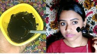 കരിമംഗല്യം മാറാൻ| Melasma treatment| homemade face packnikki Tips and Talks Malayalam Beauty channel