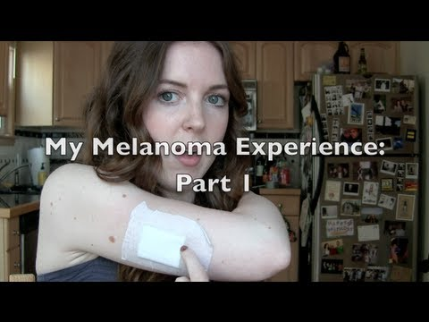 VLOG: Skin Cancer at 23? My Experience with Melanoma: Part 1 | chelsea wears