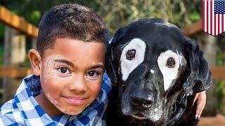 米アーカンソー州のカーター・ブランチャード君(8)は、肌に白い斑点が...