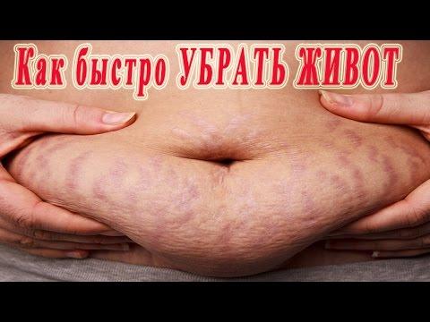 Геморрой: симптомы и лечение