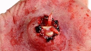 World's Biggest Zit with Maggot Infection!