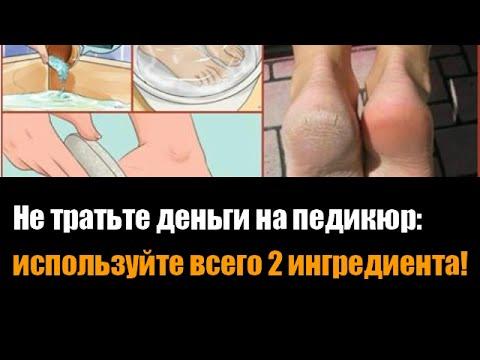 Лечение грибка ногтей йодом. Йод от грибка ногтей на руках
