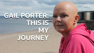 """It's Basically Like I Went Bonkers"" | BBC Scotland | Being Gail Porter"