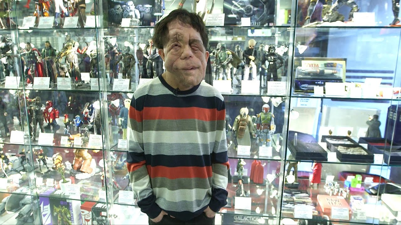adam pearson twin brother