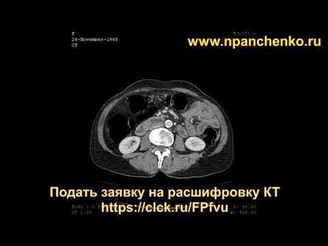 Расшифровка КТ брюшной полости с контрастированием показала кисты (метастазы) в печени