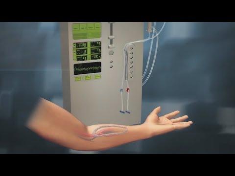 Как вшивают фистулу в руку