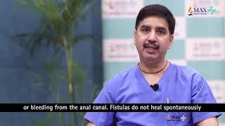 Fistula in Ano- VAAFT - Expert DocTalk with Dr  Vishwas Sharma