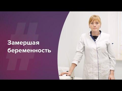 Замершая беременность. Лечение бесплодия. Акушер-гинеколог. Ольга Прядухина. Москва