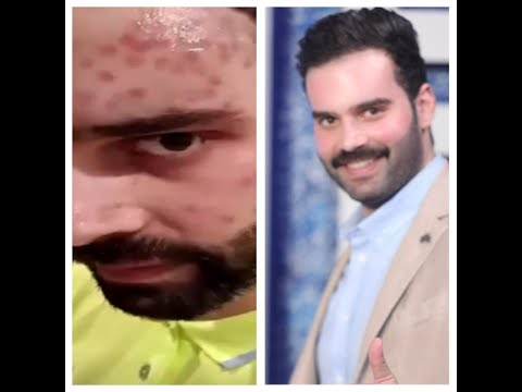سعود بوشهري لأول مره يتكلم عن تشوه وجهه بسبب حسد فنانه مشهوره والقناة التي عرضت مبلغ كبير لكشف أسمها