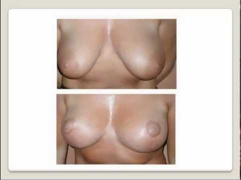 Levantamiento de aumento de senos