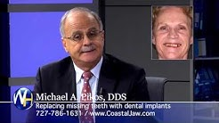 Replace Missing Teeth with Dental Implants with Tampa Oral Surgeon Michael Pikos, DDS