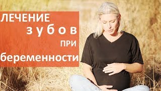 Лечение зубов при беременности. 🤰🏻 Безопасное лечение зубов у беременных. Мать и Дитя(, 2018-01-17T13:52:42.000Z)