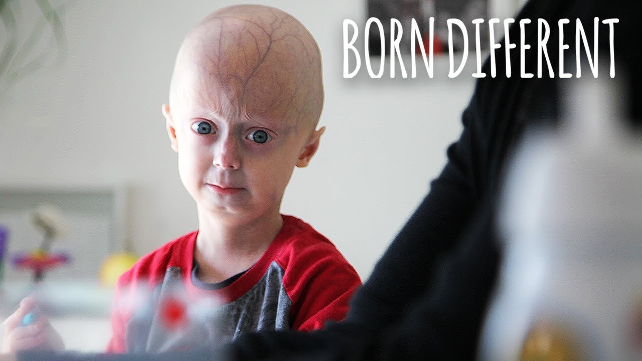 The 6-Year-Old Who's Ageing Too Fast | BORN DIFFERENT