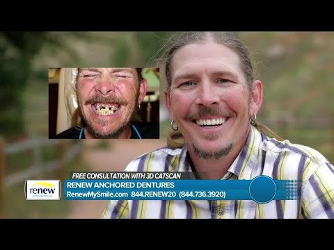 affordable-dental-transformation-at-renew-dental
