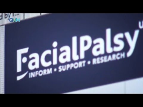 BELL'S PALSY AND BILATERAL FACIAL NERVE PARALYSIS.