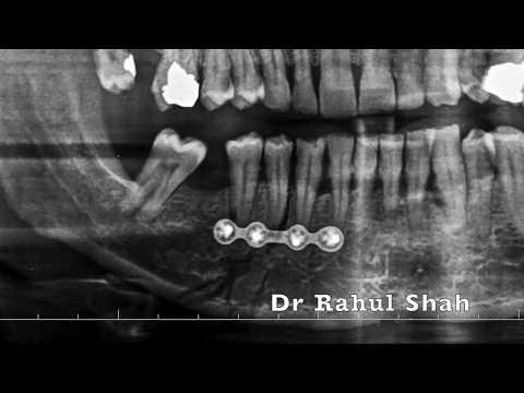 Navident by ClaroNav Dr Rahul M Shah