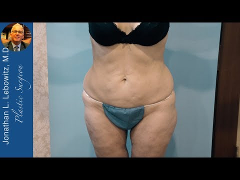 Upper Body & Legs Female VaserLipo Body Contouring, The Long Island J-Plasma Center By Dr. Lebowitz