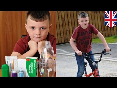 Extreme allergies: Boy allergic to own hair gets asthma attacks from strong emotions