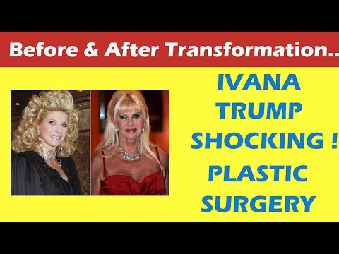Ivana Trump Plastic Surgery Before and After Full HD