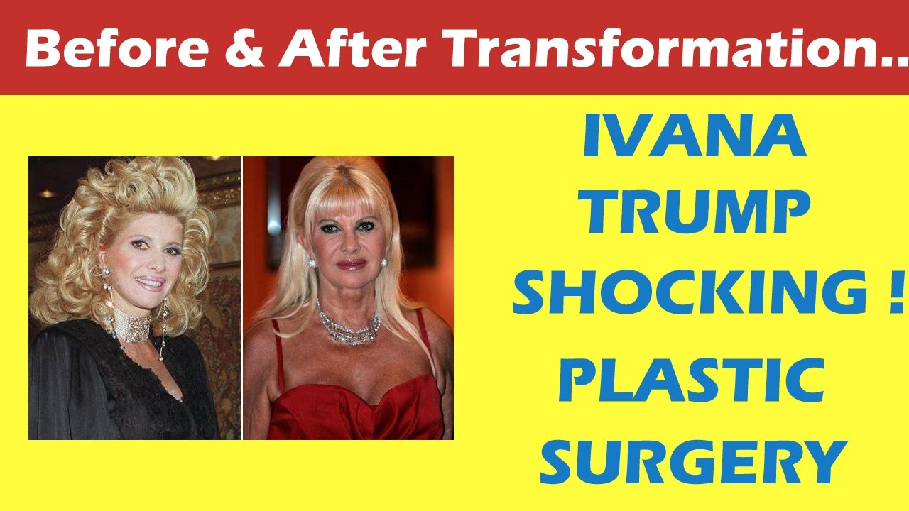 Ivana Trump Plastic Surgery Before and After Full HD - YouTube