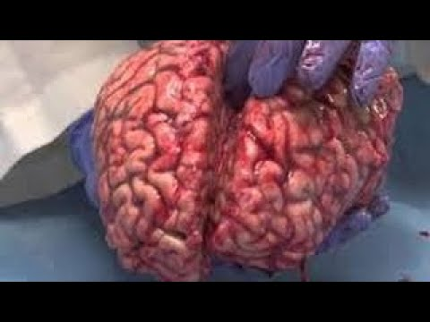 Emmy Nominated Extracting A Deadly Brain Tumor Medicine vesves Surgery Documentary