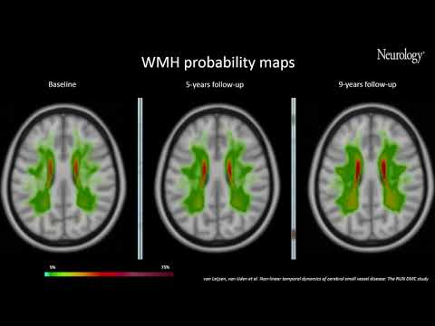 Video 1 Nonlinear temporal dynamics of cerebral small vessel disease