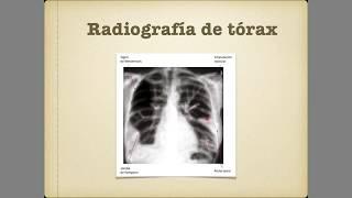 Se pulmonar dissolverá embolia a