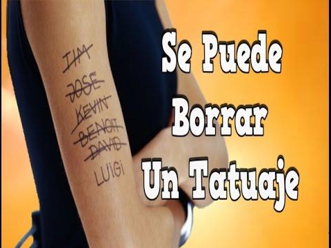 Se Puede Borrar Un Tatuaje Cremas Para Borrar Tatuajes Remocion De