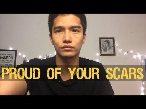 Be Proud of Your Scars [Original Video]  (kintsugi) - จงภูมิใจในบาดแผลของคุณ
