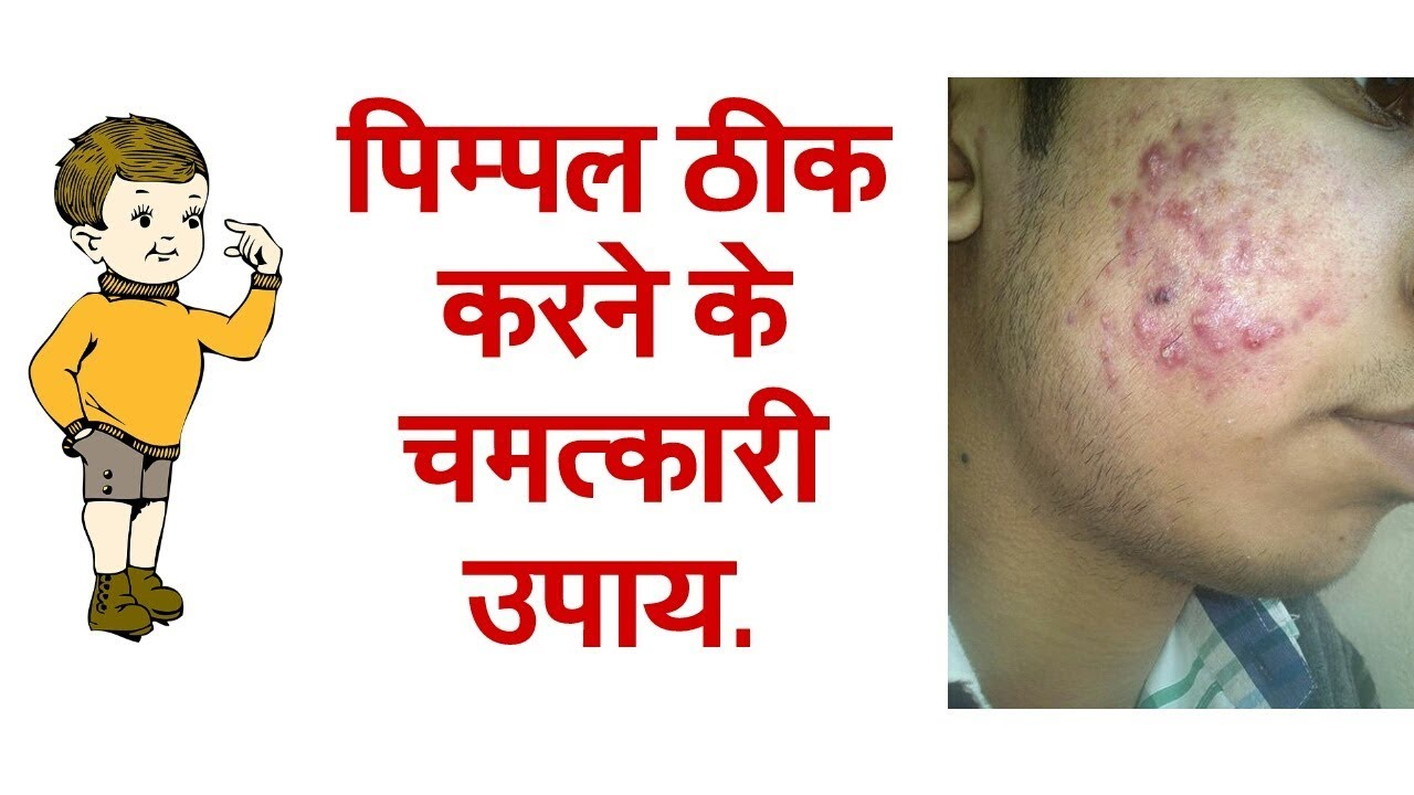 How To Remove Pimples प म पल ठ क करन क