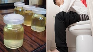 2 Ways To Cure Completely Hemorrhoids With Coconut Oil Afer A Week, Get Rid Of Hemorrhoids Naturally