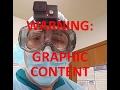 Autopsy 1 Part 2 video