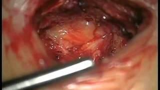 Операция - удаление грыжи межпозвонкового диска(Это и другие видео с сайта - http://www.neuro-online.ru., 2010-12-19T06:01:05.000Z)