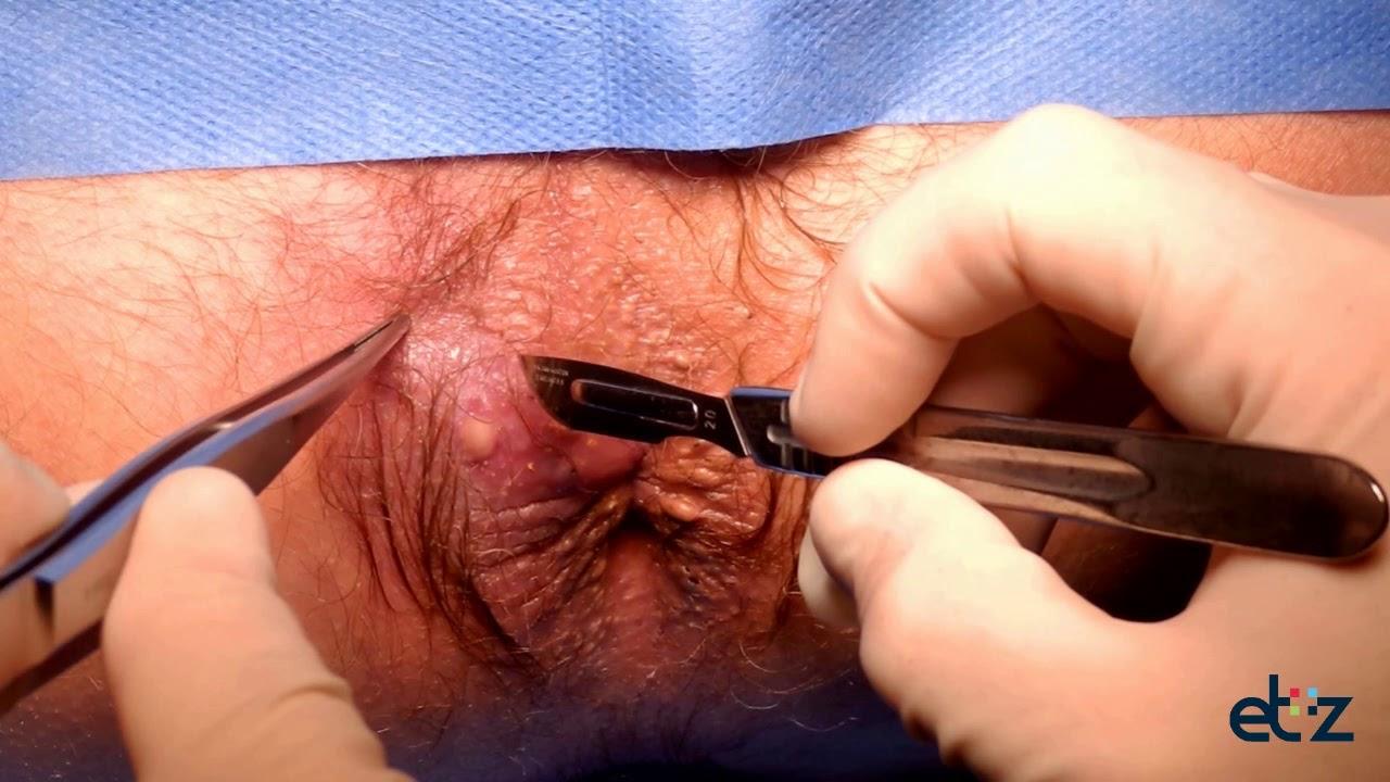Anal fistula operation