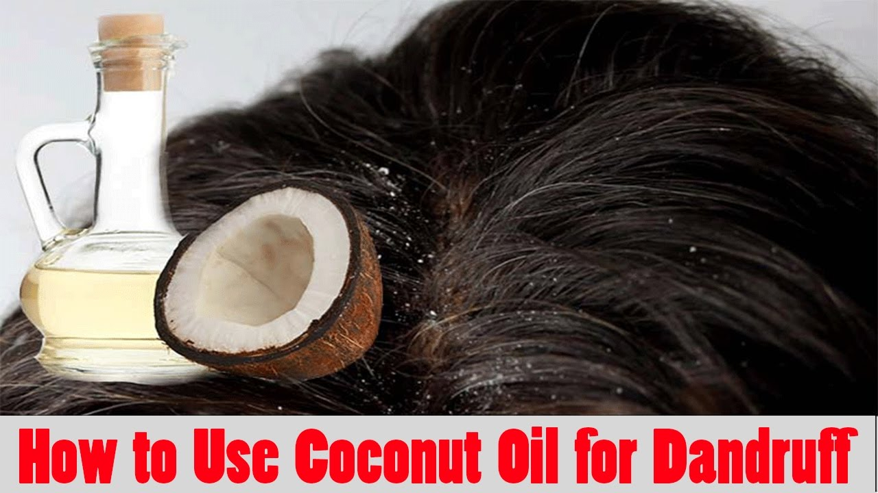 Coconut Oil For Hair How To Use Coconut Oil For Dandruff Hair - How to use coconut oil on hair