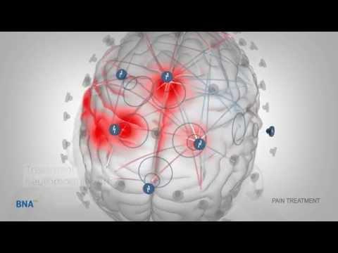 Brain Network Activation (BNA)