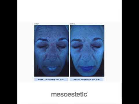 mesoestetic Pharma Group - estudios clínicos.