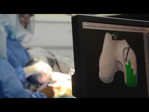 MAKOplasty: Robotic-Assisted Surgery