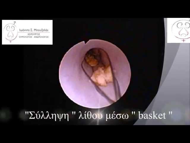 Ενδοσκοπική αφαίρεση λίθου ουρητήρα