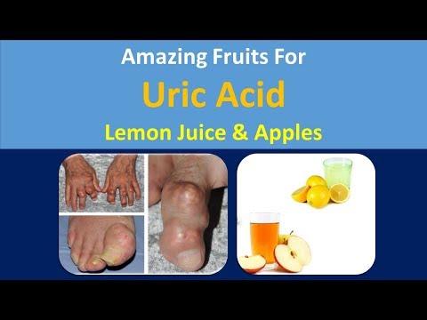 Amazing Fruits for uric acid | lemon juice & Apples