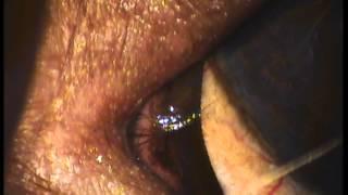 трихиаз медиального угла глазной щели у собак