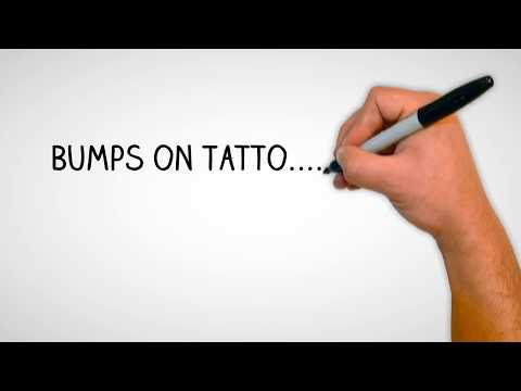 bumps-on-tattoo--is-it-possible-to-have-keratosis-pilaris-and-tattoos?