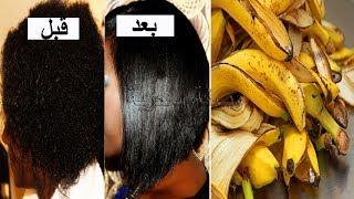 كنت أرمي قشور الموز حتى أخبرني الطبيب عن كيفية صنع خلطة بها لتمليس وفرد الشعر الخشن والمجعد