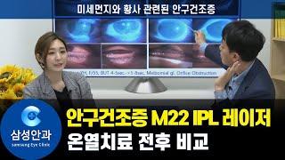 안구건조증 M22 IPL 레이저 온열치료 전후 비교 (…