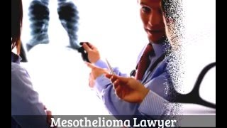 How to Find Mesothelioma Lawyer in USA