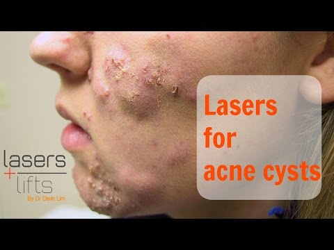 Treating acne cysts
