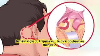La névralgie du trijumeau : la pire douleur au monde ?